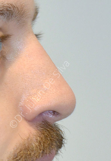 Nose Re-Shaping After 103