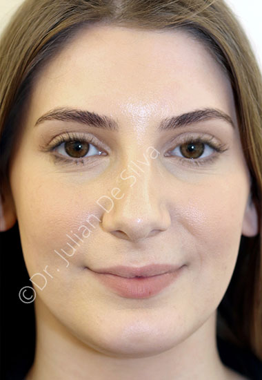 Nose Re-Shaping After 97