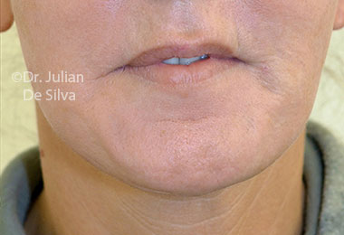 Skin & Laser Resurfacing After 10
