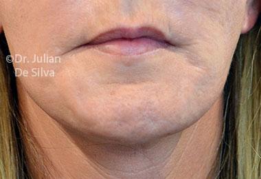 Skin & Laser Resurfacing Before 10