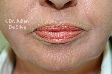 Skin & Laser Resurfacing After 9