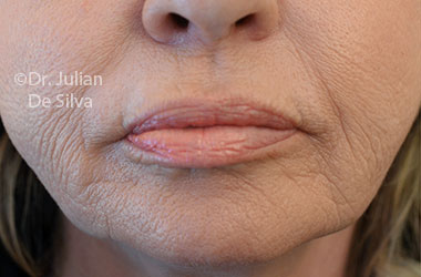 Skin & Laser Resurfacing Before 9