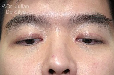 Male face, After Asian Blepharoplasty, front view, patient 16
