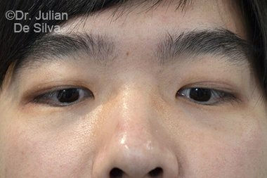 Male face, before Asian Blepharoplasty, front view, patient 16