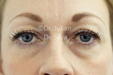 Eyelid Surgery (Blepharoplasty) Before 117