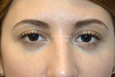 Eyelid Surgery (Blepharoplasty) After 119