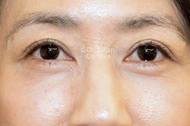 Eyelid Surgery (Blepharoplasty) After 121