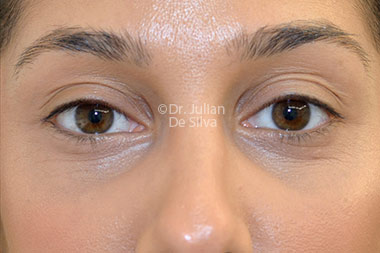 Eyelid Surgery (Blepharoplasty) After 122