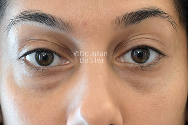 Eyelid Surgery (Blepharoplasty) Before 122
