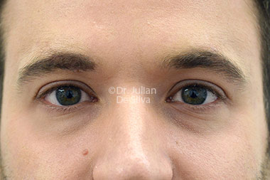 Eyelid Surgery (Blepharoplasty) Before 123