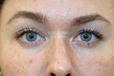Eyelid Surgery (Blepharoplasty) After 124