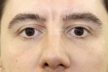 Eyelid Surgery (Blepharoplasty) After 125
