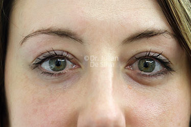Eyelid Surgery (Blepharoplasty) After 126