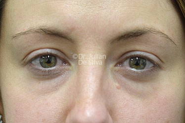 Eyelid Surgery (Blepharoplasty) Before 126