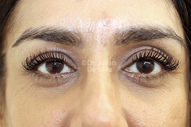 Eyelid Surgery (Blepharoplasty) After 127