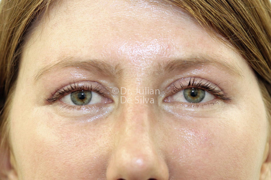 Eyelid Surgery (Blepharoplasty) After 128