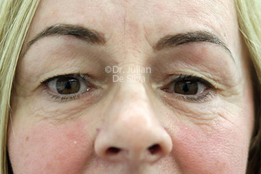Eyelid Surgery (Blepharoplasty) Before 129