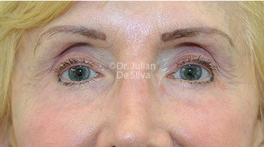 Eyelid Surgery (Blepharoplasty) After 130