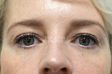 Eyelid Surgery (Blepharoplasty) Before 131