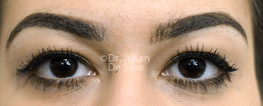 Eyelid Surgery (Blepharoplasty) Before 132