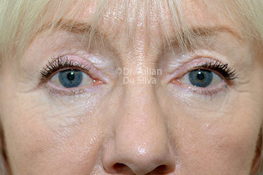 Eyelid Surgery (Blepharoplasty) After 133
