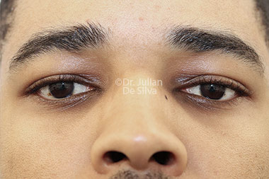 Eyelid Surgery (Blepharoplasty) After 134