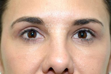 Eyelid Surgery (Blepharoplasty) After 103