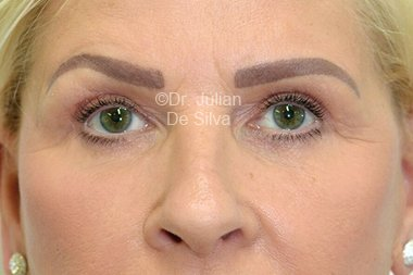 Eyelid Surgery (Blepharoplasty) After 104