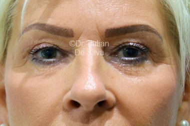 Eyelid Surgery (Blepharoplasty) Before 104