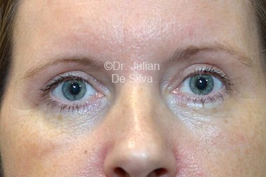 Eyelid Surgery (Blepharoplasty) After 105