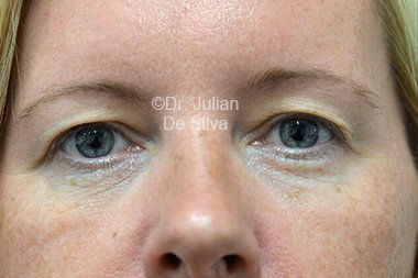 Eyelid Surgery (Blepharoplasty) Before 105