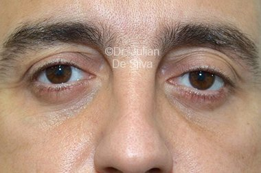 Eyelid Surgery (Blepharoplasty) After 106