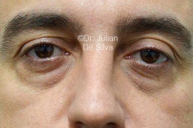 Eyelid Surgery (Blepharoplasty) Before 106