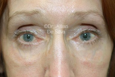 Eyelid Surgery (Blepharoplasty) After 107