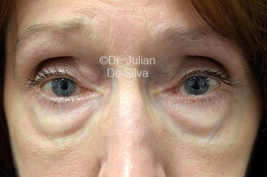 Eyelid Surgery (Blepharoplasty) Before 107