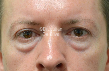 Eyelid Surgery (Blepharoplasty) Before 108