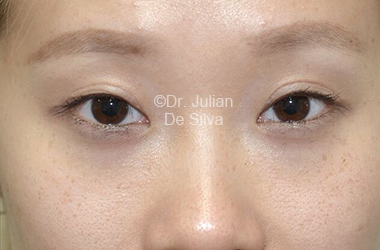Eyelid Surgery (Blepharoplasty) After 111
