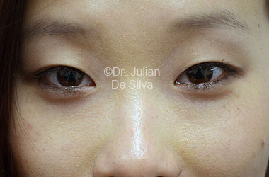 Eyelid Surgery (Blepharoplasty) Before 111