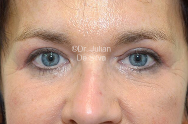 Eyelid Surgery (Blepharoplasty) After 112