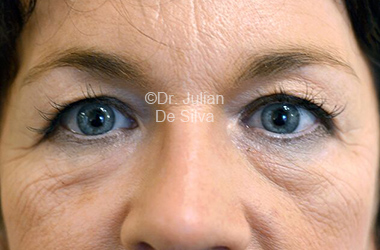 Eyelid Surgery (Blepharoplasty) Before 112