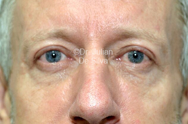 Eyelid Surgery (Blepharoplasty) After 113