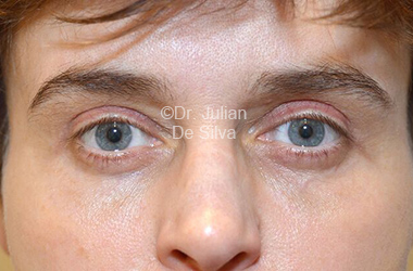 Eyelid Surgery (Blepharoplasty) After 115
