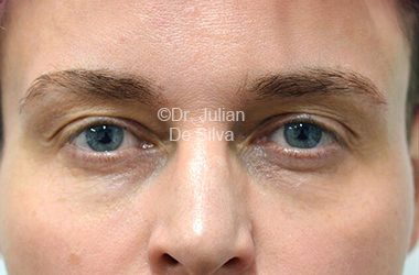 Eyelid Surgery (Blepharoplasty) Before 115