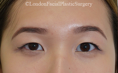 Woman's face, After Asian Blepharoplasty, front view, patient 15