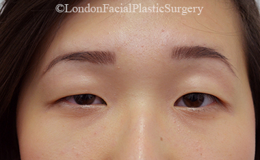 Woman's face, before Asian Blepharoplasty, front view, patient 15