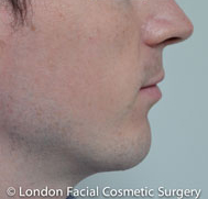 Chin Implants & Reduction After 3