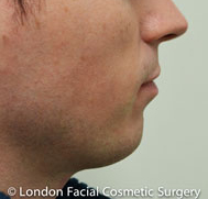 Chin Implants & Reduction Before 3