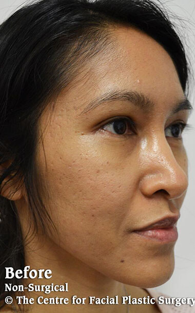 Non-Surgical Treatments Before 1