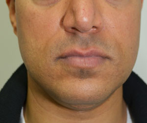 Chin Implants & Reduction Before 5