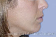 Chin Implants & Reduction After 1